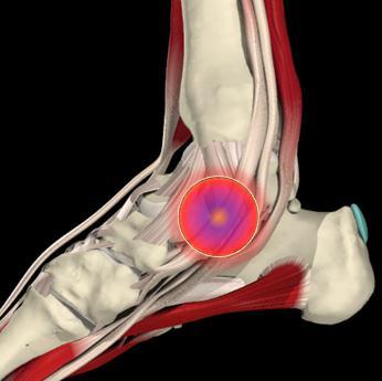 douleurs aux pieds tedop